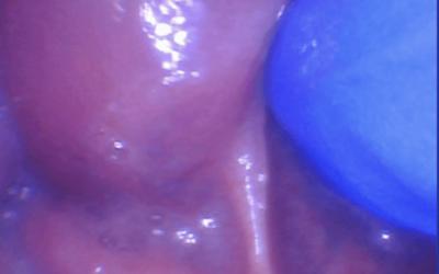 Tongue-Tie vs. Symptomatic Tongue Restriction
