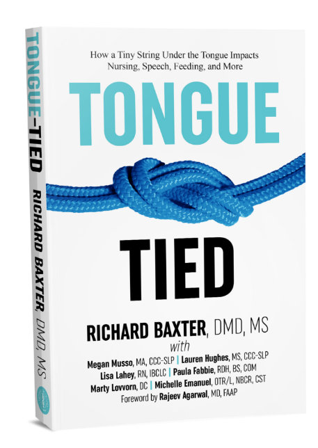 Release Tongue Ties Laser Technology Tongue Ties Birmingham AL book tongue tie